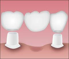 Bridges | Layton Hills Dental